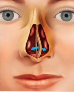 septal perforation