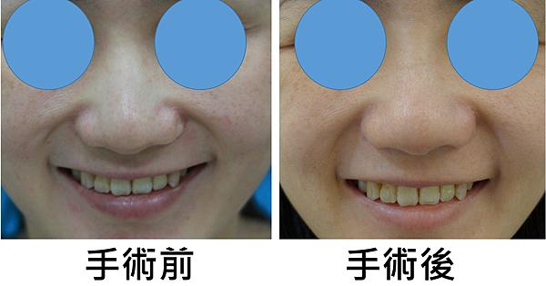 左側鼻翼塌陷2