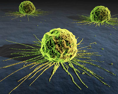 美國終於承認手術、放化療後癌細胞反而加速擴散.jpg
