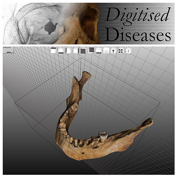 Digitised Diseases