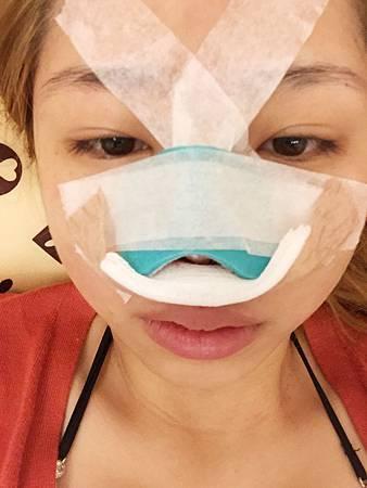 小玲隆鼻3