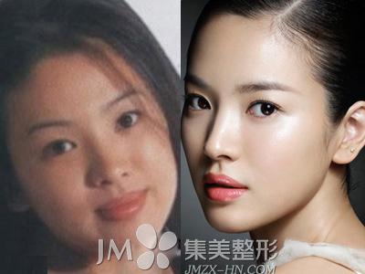 宋慧喬整容前後對比圖/송혜교 Hye-gyo Song Photos