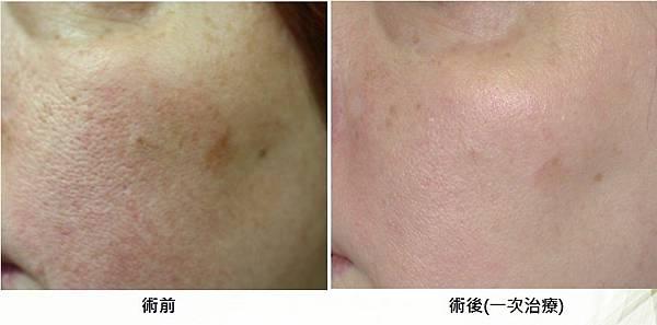 改善毛孔、膚色與緊實.jpg
