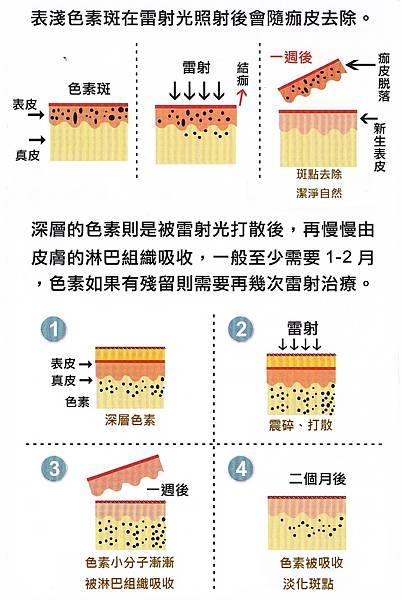 修雷射除斑作用過程