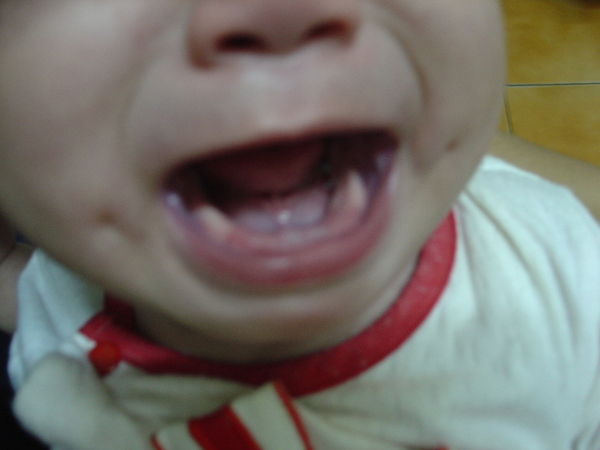 2006-09-08 schnappi的牙好像快長了...