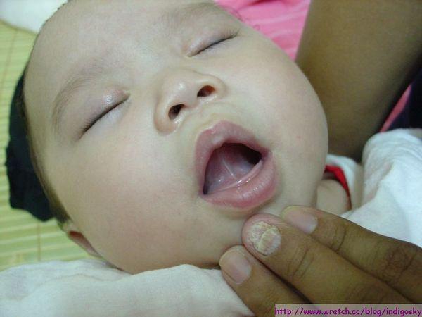 健康的小孩舌頭都是往上頂的