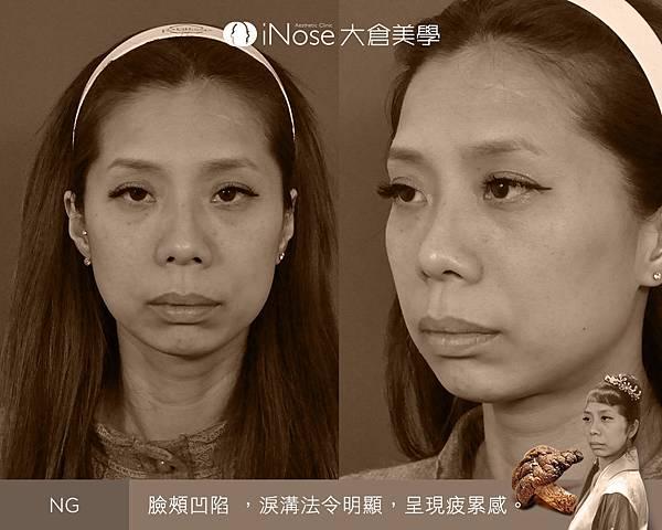 隆鼻玻尿酸 (3).jpg