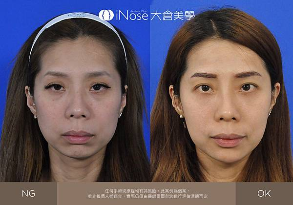 隆鼻玻尿酸 (5).jpg