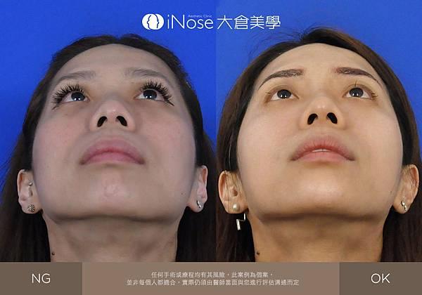 隆鼻玻尿酸 (6).jpg