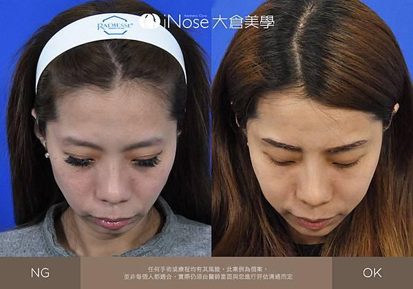 隆鼻玻尿酸 (7).jpg