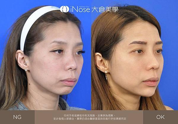 隆鼻玻尿酸 (8).jpg