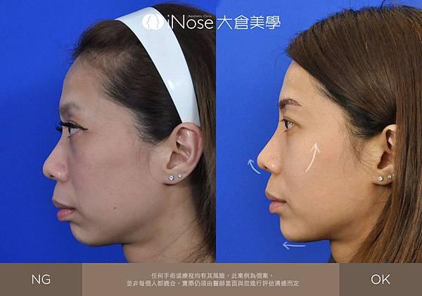 隆鼻玻尿酸 (9).jpg