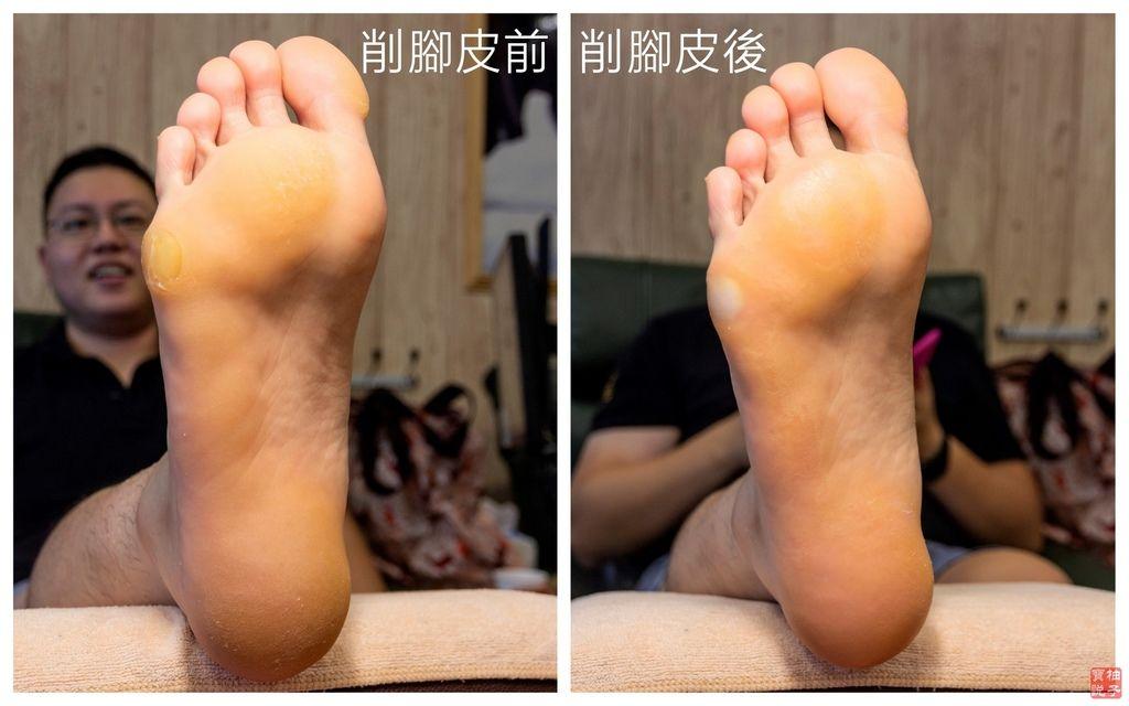 削腳皮前後左腳.jpg