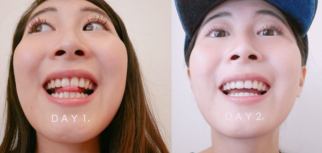 牙齒美白10.jpg