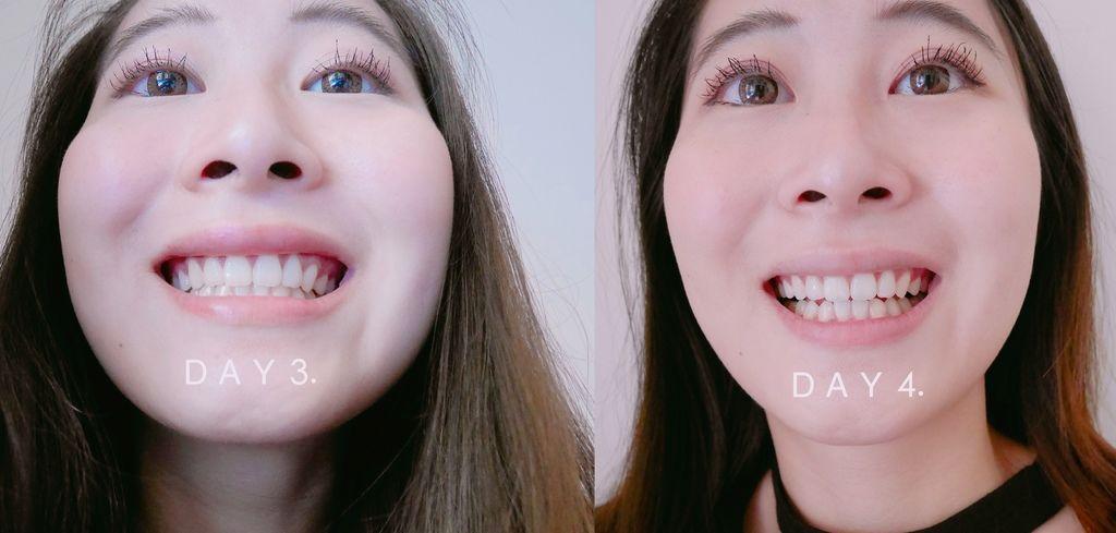 牙齒美白13.jpg