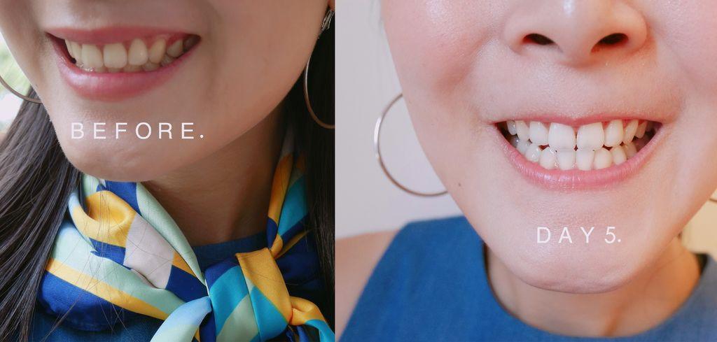 牙齒美白14.jpg