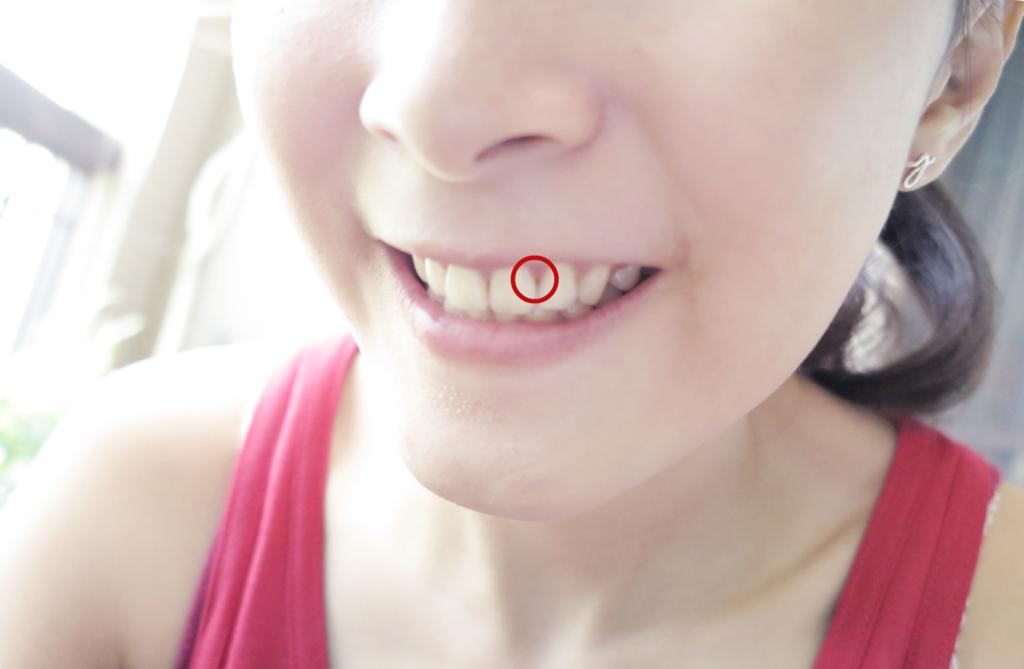 牙齒20.png