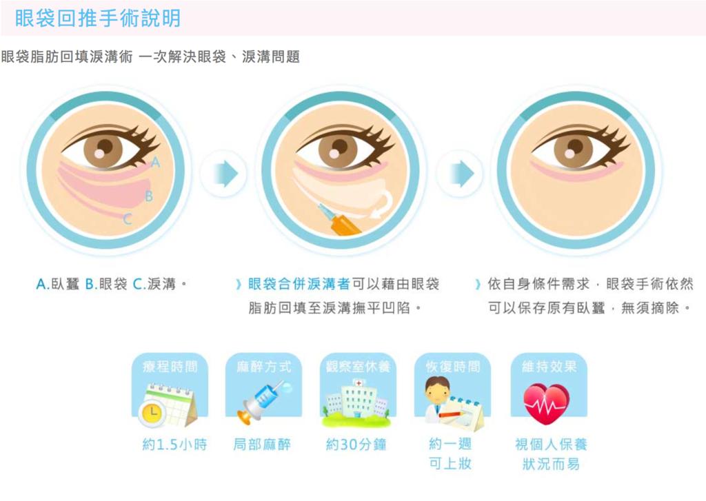 眼袋手術 12