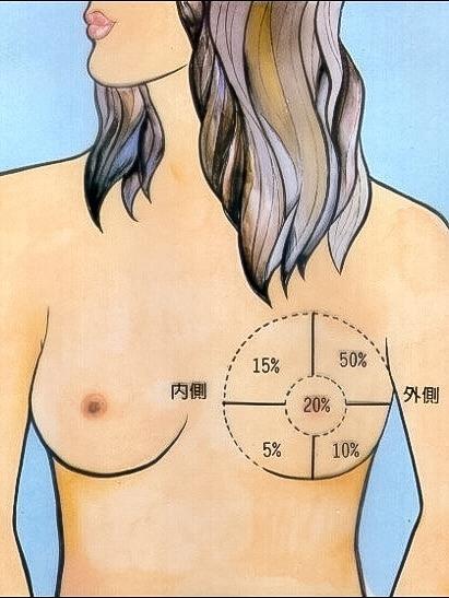 P8)乳房各部位發生乳癌的機率(本圖取自台安醫院).jpg