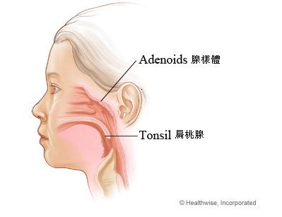 Adenoids&Tonsils.bmp