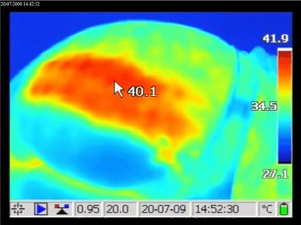 利用電波加熱深層組織,使預熱治療部位達到39-42°C