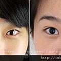 雙眼皮手術術後