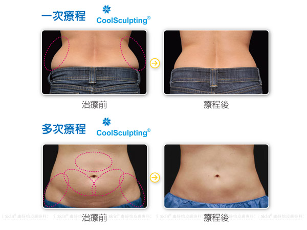 coolsculpting004