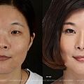 鼻整形案例-珊珊01
