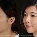 鼻整形案例-珊珊02