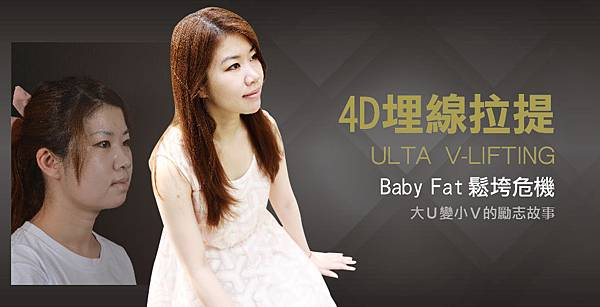 4D 埋線拉提/Baby Fat 鬆垮危機