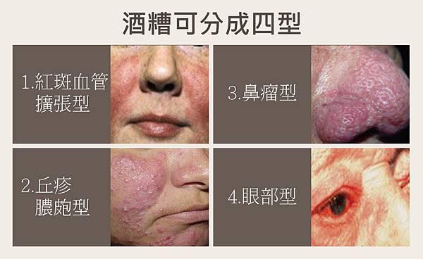 Physicians Box-Dermatitis-5