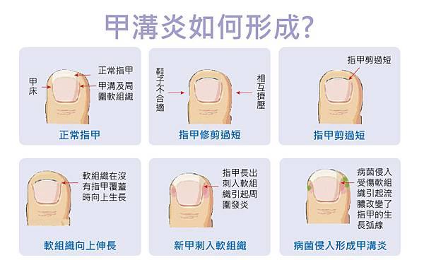 Huang-Doctor-Fingernail-2
