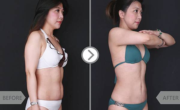 Coolsculpting-lily-2