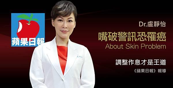 盧靜怡醫師受訪《蘋果日報》談嘴破2周沒好,恐罹癌警訊