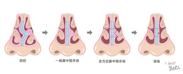 Chen-Doctor-nasal_septum2-5