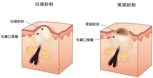 Chinyun-Doctor-skin-3