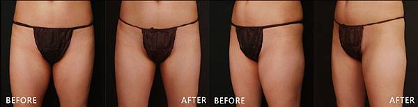 CoolSculpting-Madison-ba