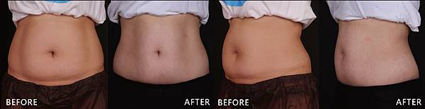 CoolSculpting-kiki-ba