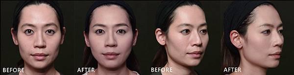 Hyaluronic+Botox-Vera-ba