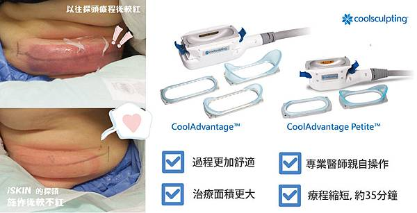冷凍減脂CoolSculpting-mm-3