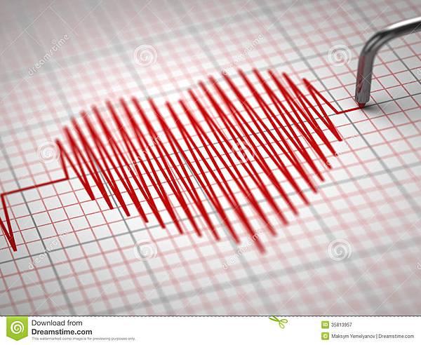 ecg-心电图和心跳形状。-35813957