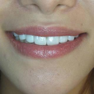AFTER~利用微笑曲線設計讓微笑改邪歸正。320