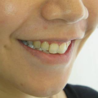 Ann術前已經做過矯正,雖然牙齒排列算整齊,但對牙齒顏色形態與臉歪不滿意。.JPG320.jpg