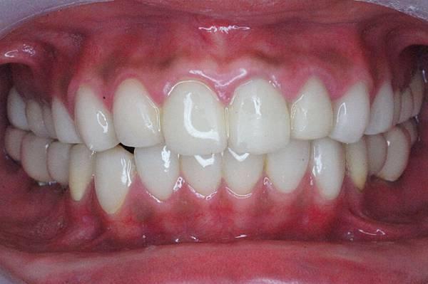 05 重新將缺牙的地方補上
