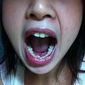 牙套前(下排)