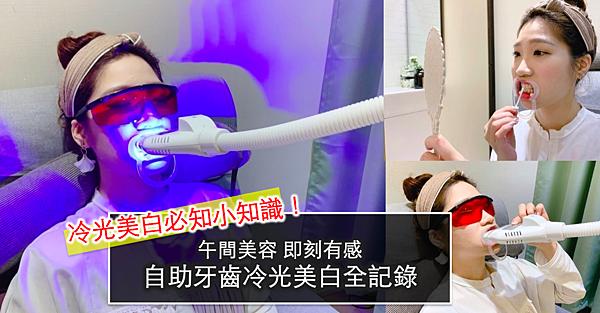 台北牙齒美白推薦.png