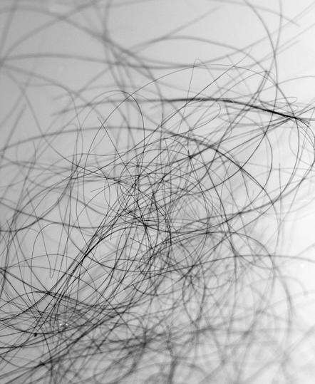 shedding-hair