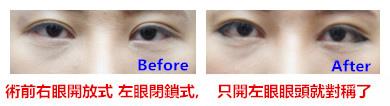 節眼睛比對圖