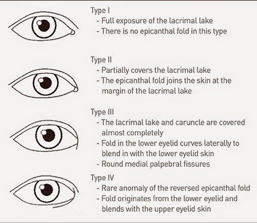 types of epicanthal fold