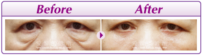 外開式眼袋術前術後3.png